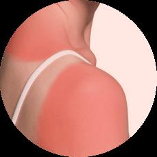 non blistered sunburns